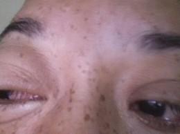 Persona infectada con conjuntivitis.